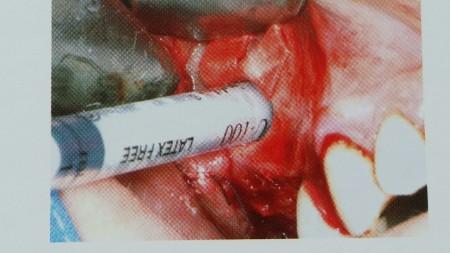 Otwarte podniesienie dna zatoki szczękowej - zdj6