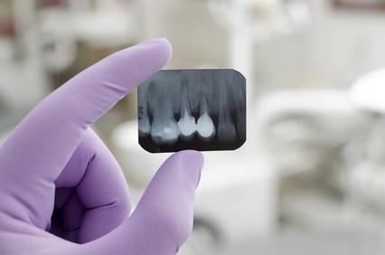 Implanty zębów - zdjęcie RTG