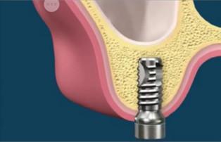 Podniesienie dna zatoki - wprowadzony implant w kość pod dnem zatoki