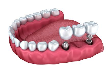 Szczęka z implantami zębów